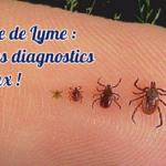 Maladie de Lyme : 80 % des diagnostics sont faux !